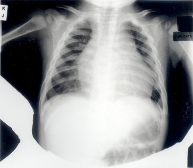 Figure 1. Chest X-ray showing gross cardiomegaly and a small left pleural effusion